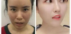 成都艾美薇做鼻综合和眼综合术后效果分享