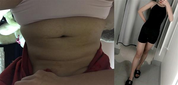 上海首尔丽格医院吸脂减肥术后效果分享
