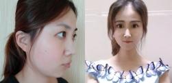 上海华美做下颌骨术后效果分享