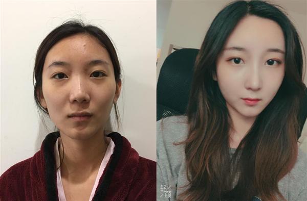 四川华美紫馨做耳软骨+硅胶鼻子术后效果分享