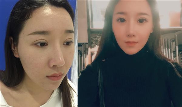上海康丽做面部吸脂术后效果分享