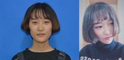 北京当代做全切双眼皮术后效果分享