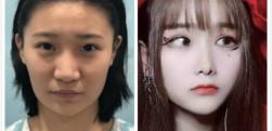 重庆军科做隆鼻手术3个月效果分享