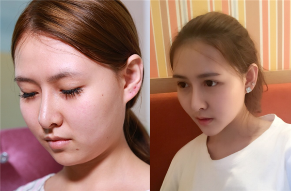 上海名格做面部吸脂术后效果分享