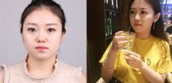 上海原辰做脸部吸脂术后效果分享