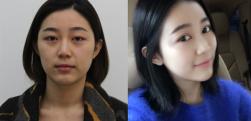 广州晨曦做自体脂肪填充面部术后效果分享