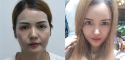 广州韩妃做自体脂肪面部填充术后效果分享