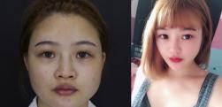 广州时光做光纤溶脂瘦脸术后效果分享
