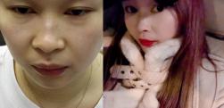 上海微蓝做隆鼻术后效果分享