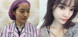 上海玫瑰做硅胶隆鼻术后效果分享