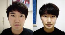 杭州连天美做下颌角整形术后效果分享...