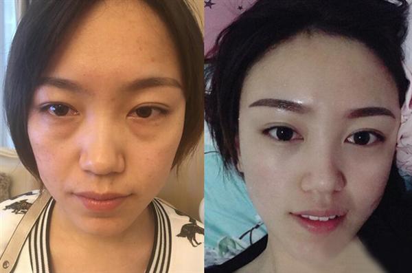 北京彤美做内切去眼袋术后效果分享