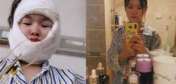 重庆美莱做下颌角术后效果分享