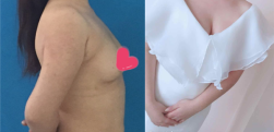 南京东美做假体隆胸怎么样?术后效果分享