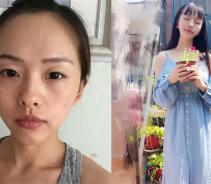 上海仁爱做自体脂肪面部填充术后效果分享...
