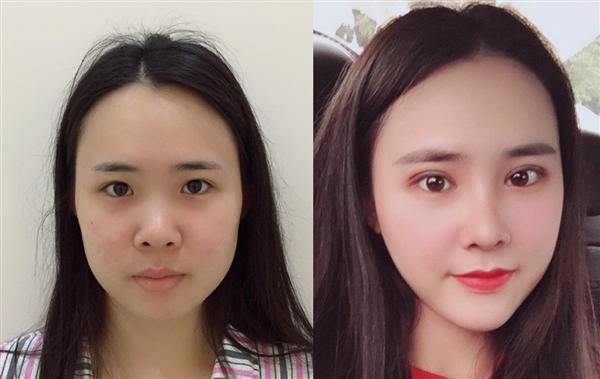 武汉新至美做耳软骨隆鼻术后效果分享
