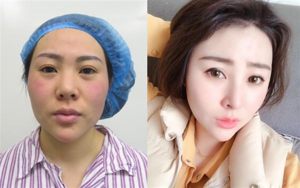 杭州格莱美做鼻综合怎么样?术后效果分享