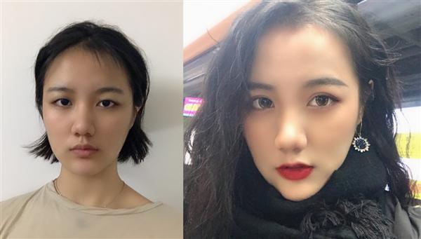 上海丽宣做假体下巴术后效果分享
