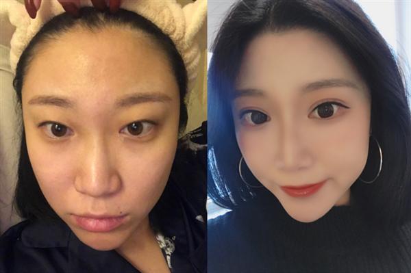 南京康丽做双眼皮怎么样?术后效果分享