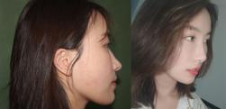 上海同济做鼻综合术后效果分享