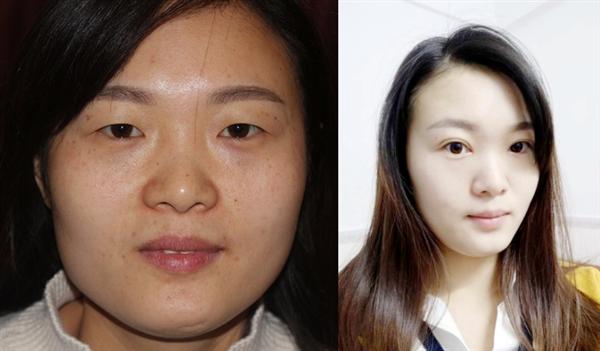 上海第一人民医院做双眼皮术后效果分享