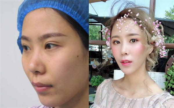 上海申玖做鼻综合术后效果分享