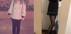 上海康奥做吸脂瘦大腿术后效果分享