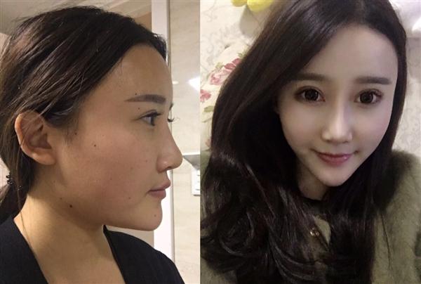 北京莫琳娜做鼻综合怎么样?术后效果分享