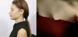 广州曙光做假体隆胸术后效果分享