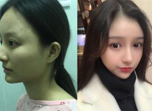 四川华美紫馨做下颌角切除术后效