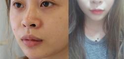 北京来美安做唇综合怎么样?术后效果分享