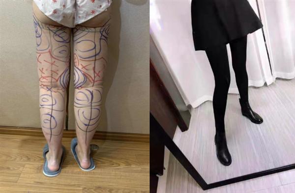 上海仁爱做吸脂瘦腿术后效果分享
