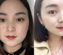 上海东方丽人做面部吸脂术后效果分享...