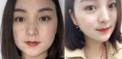 上海东方丽人做面部吸脂术后效果分享