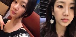 上海美之源做自体脂肪面部填充术后效果分享