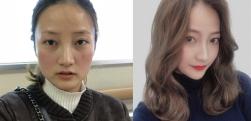 长沙雅美做下颌角整形术后效果分享
