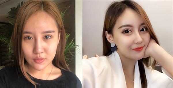 重庆美轮美奂做鼻综合术后效果分享