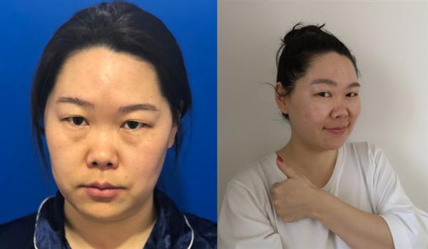 广州OT做面部吸脂术后效果分享