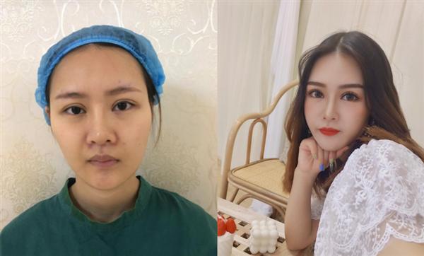 南昌大学医疗美容做双眼皮修复术后效果分享