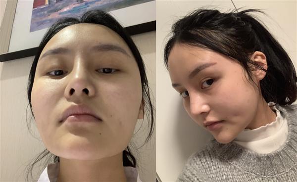 南昌莱美做下颌角切除术后效果分享