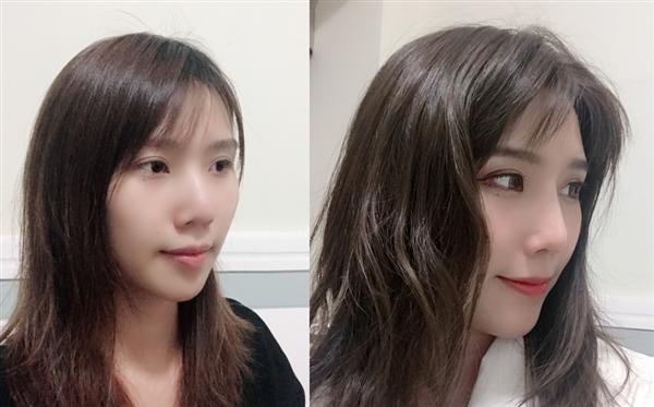 福州台江做耳软骨隆鼻术后效果分享