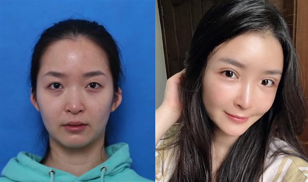 深圳港美做自体脂肪面部填充术后效果分享