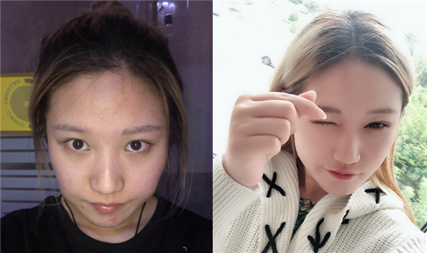 泰安韩美做V-LINE瓜子脸术后效果分享