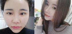上海艺星做颧骨降低术后效果分享