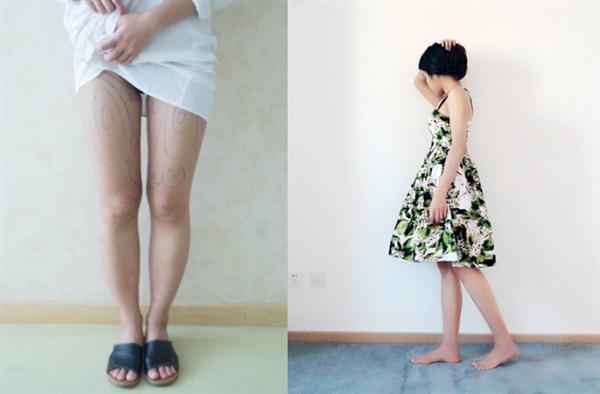 青岛蓝石做吸脂瘦腿术后效果分享