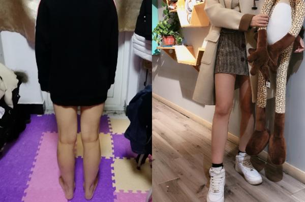 济南爱容做吸脂瘦大腿术后效果分享