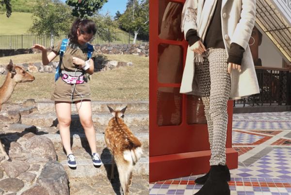 济南东方靓颖做吸脂瘦大腿术后效果分享