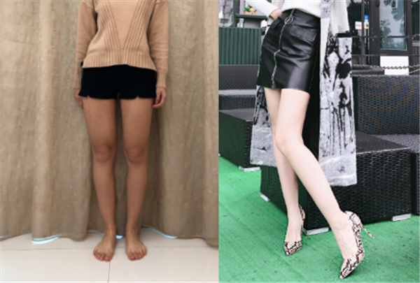 天津伊曼做吸脂瘦大腿术后效果分享