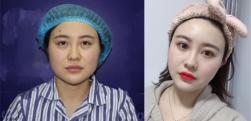 济南利维亚做面部吸脂术后效果分享