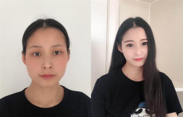上海汇捷做眼部修复术后效果分享